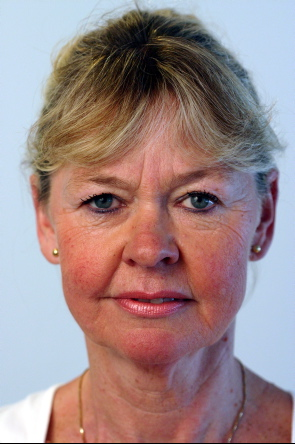 Hanne Bjørlig
